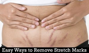 easy ways to remove stretch marks