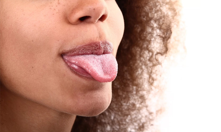 Is Your Tongue Healthy? Tongue Problems And Its Causes