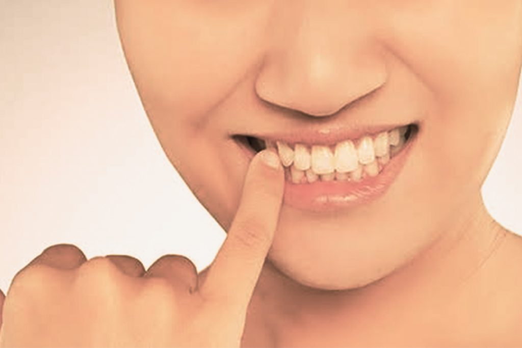 Gum disease  - HealthNews24Seven