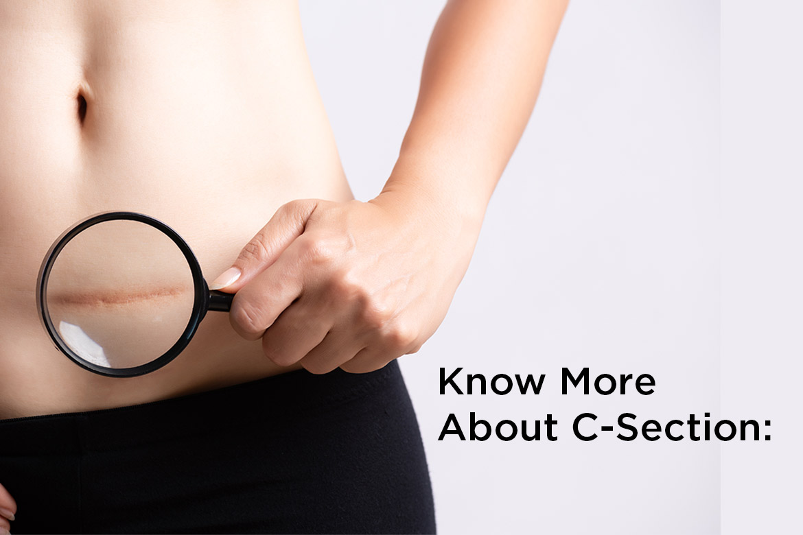 know more about c-section - HealthNews24Seven