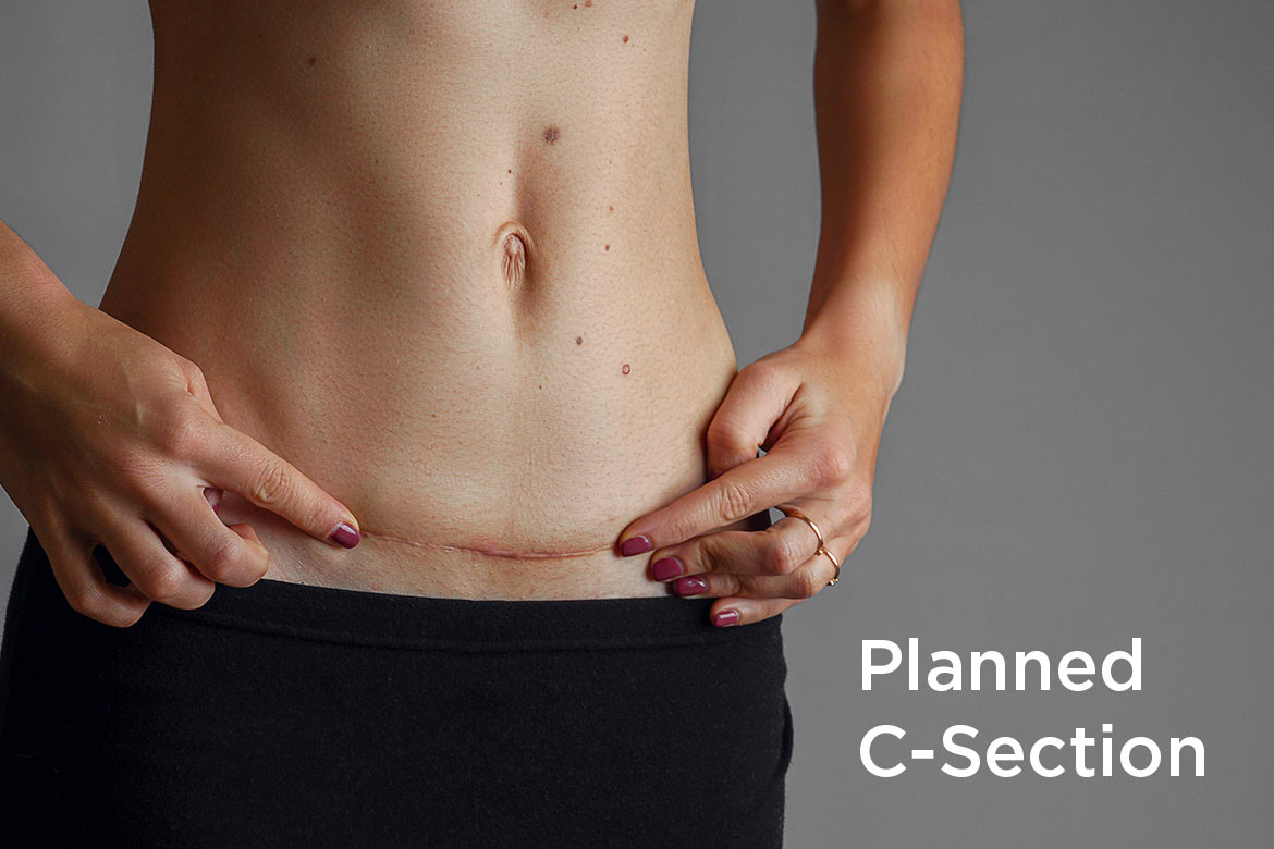 planned c-section - HealthNews24Seven